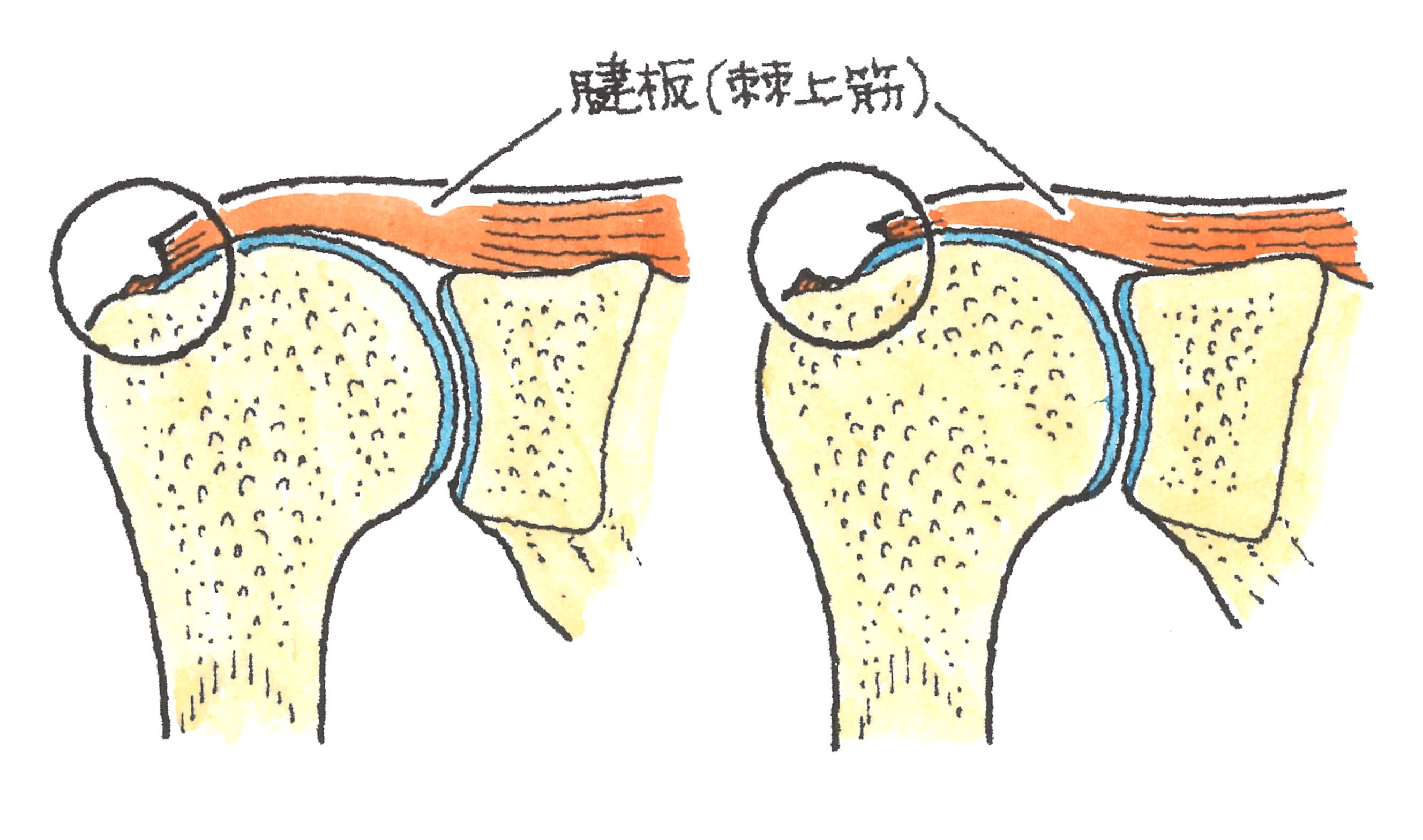 肩腱板断裂(部分断裂と完全断裂)