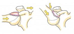 上腕骨近位端骨折5