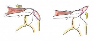 上腕骨近位端骨折6